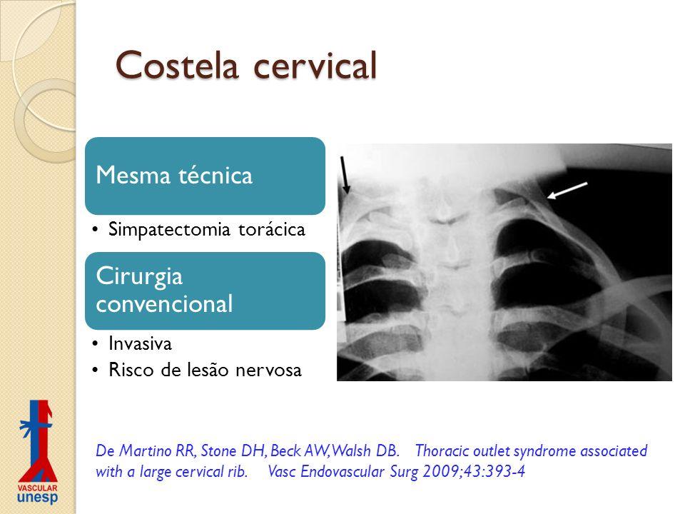 Costela cervical Mesma técnica Simpatectomia torácica Cirurgia convencional Invasiva Risco de lesão nervosa De Martino RR, Stone DH, Beck AW, Walsh DB