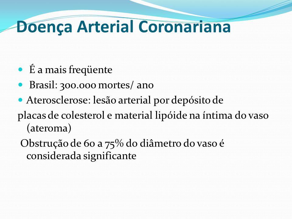 Doença Arterial Coronariana É a mais freqüente Brasil: 300.000 mortes/ ano Aterosclerose: lesão arterial por depósito de placas de colesterol e material lipóide na íntima do vaso (ateroma) Obstrução de 60 a 75% do diâmetro do vaso é considerada significante