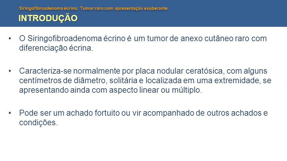 Siringofibroadenoma écrino: Tumor raro com apresentação exuberante INTRODUÇÃO O Siringofibroadenoma écrino é um tumor de anexo cutâneo raro com difere
