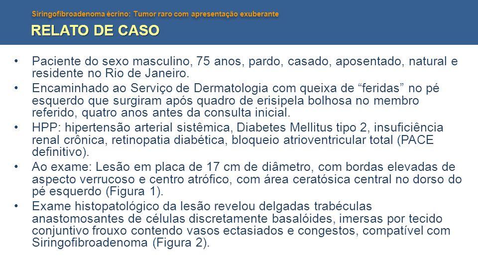 Siringofibroadenoma écrino: Tumor raro com apresentação exuberante RELATO DE CASO Paciente do sexo masculino, 75 anos, pardo, casado, aposentado, natu