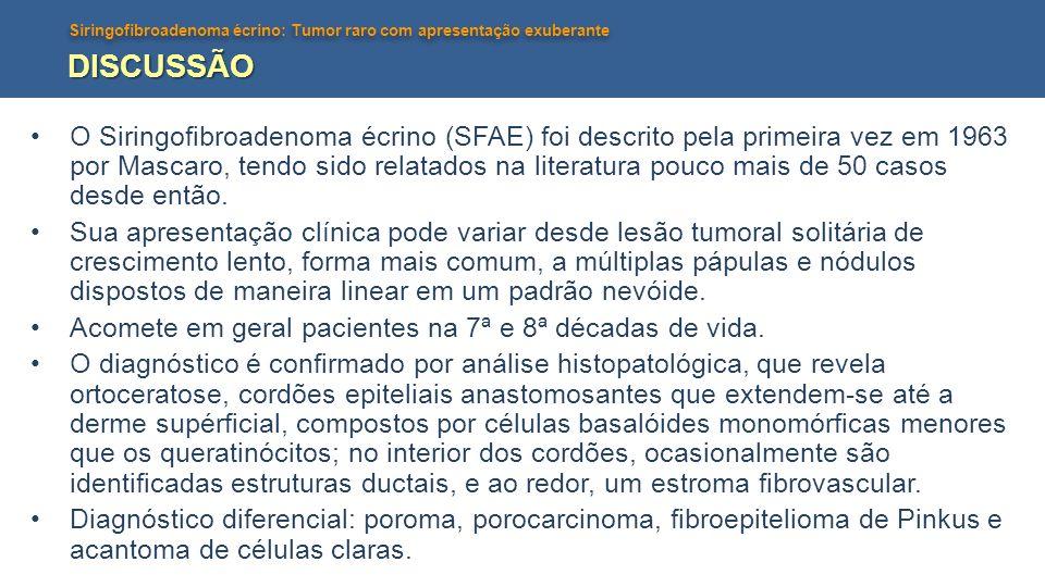 Siringofibroadenoma écrino: Tumor raro com apresentação exuberante DISCUSSÃO O Siringofibroadenoma écrino (SFAE) foi descrito pela primeira vez em 196