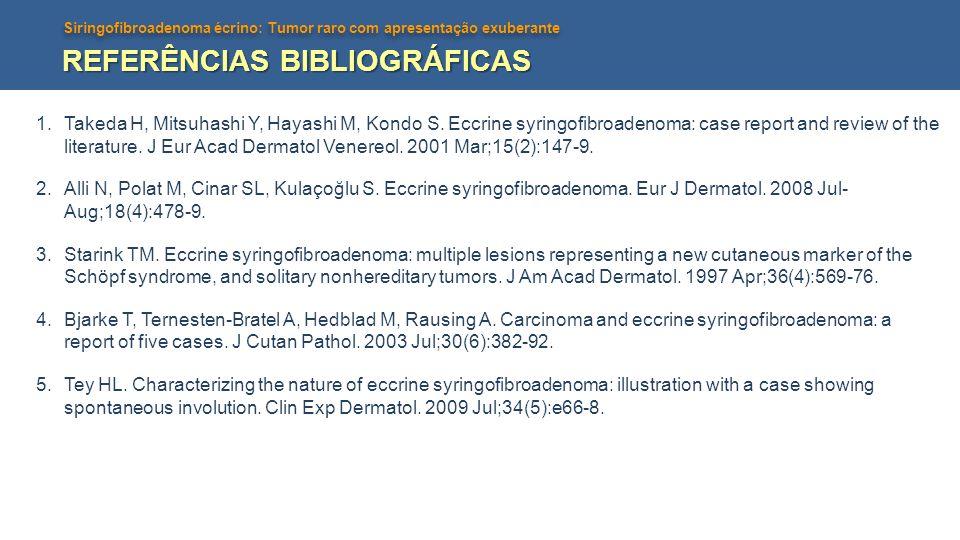 Siringofibroadenoma écrino: Tumor raro com apresentação exuberante REFERÊNCIAS BIBLIOGRÁFICAS 1.Takeda H, Mitsuhashi Y, Hayashi M, Kondo S. Eccrine sy