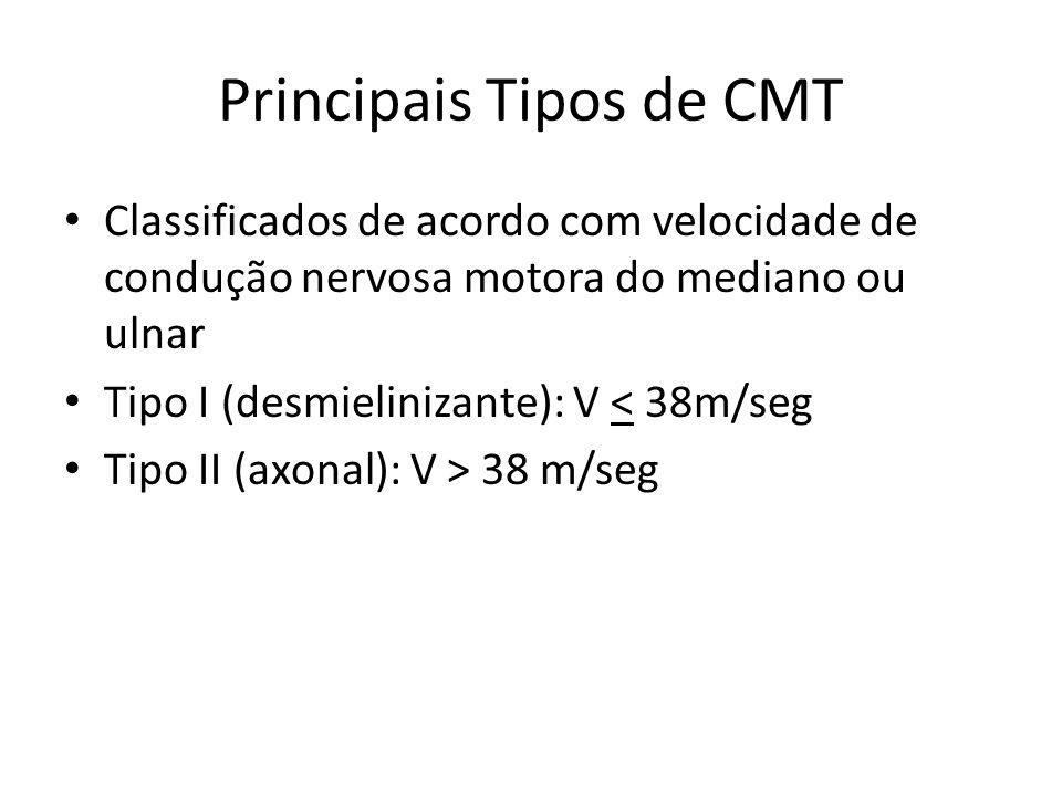 Principais Tipos de CMT Classificados de acordo com velocidade de condução nervosa motora do mediano ou ulnar Tipo I (desmielinizante): V < 38m/seg Ti
