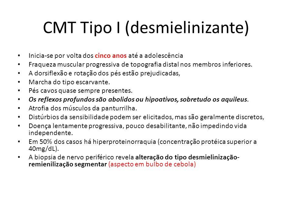 CMT Tipo I (desmielinizante) Inicia-se por volta dos cinco anos até a adolescência Fraqueza muscular progressiva de topografia distal nos membros infe