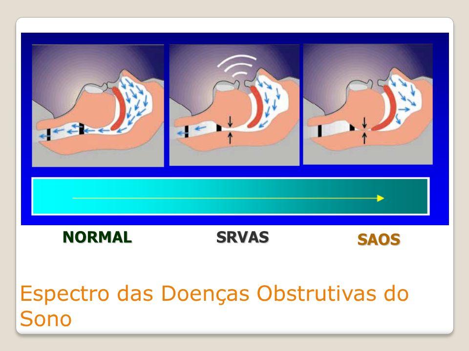 Espectro das Doenças Obstrutivas do Sono NORMALSRVAS SAOS