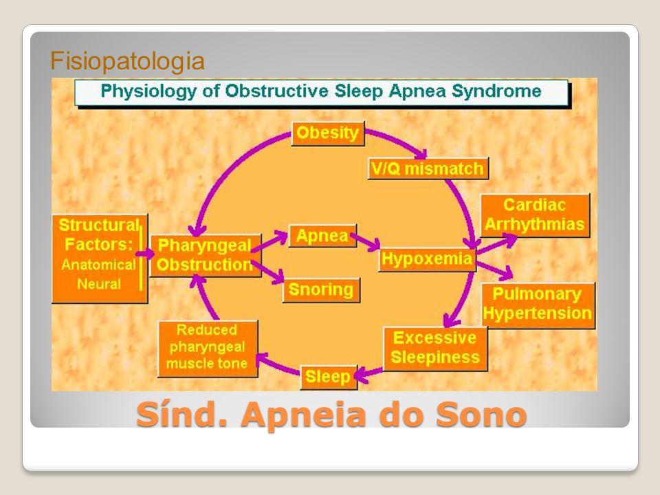 Sínd. Apneia do Sono Fisiopatologia
