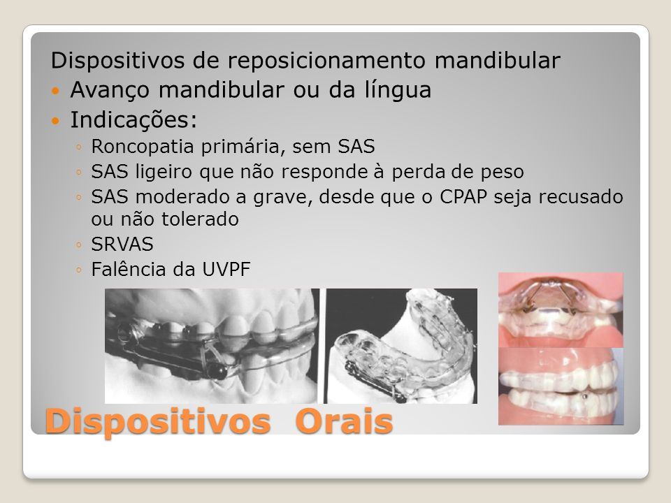 Dispositivos Orais Dispositivos de reposicionamento mandibular Avanço mandibular ou da língua Indicações: Roncopatia primária, sem SAS SAS ligeiro que