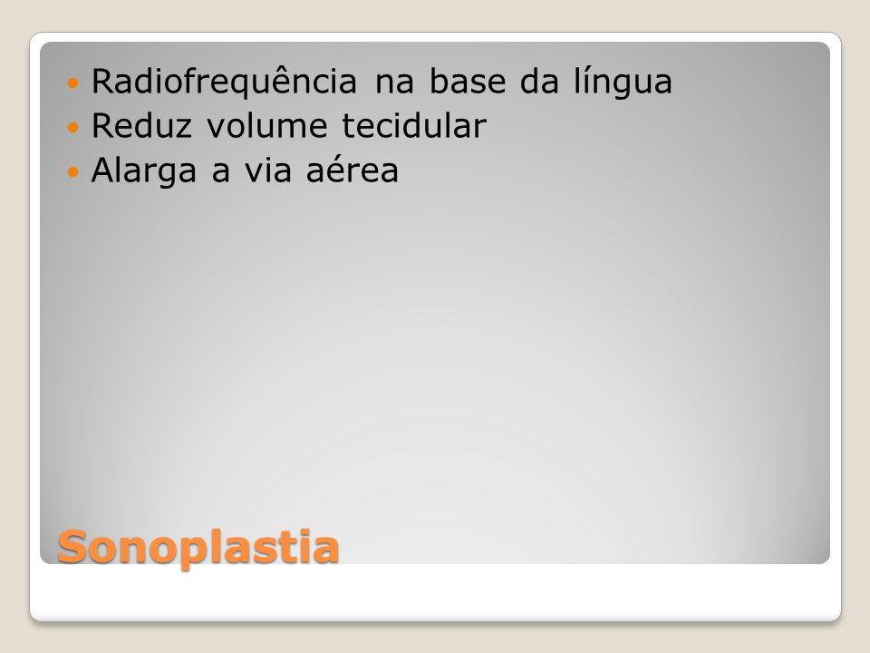 Sonoplastia Radiofrequência na base da língua Reduz volume tecidular Alarga a via aérea
