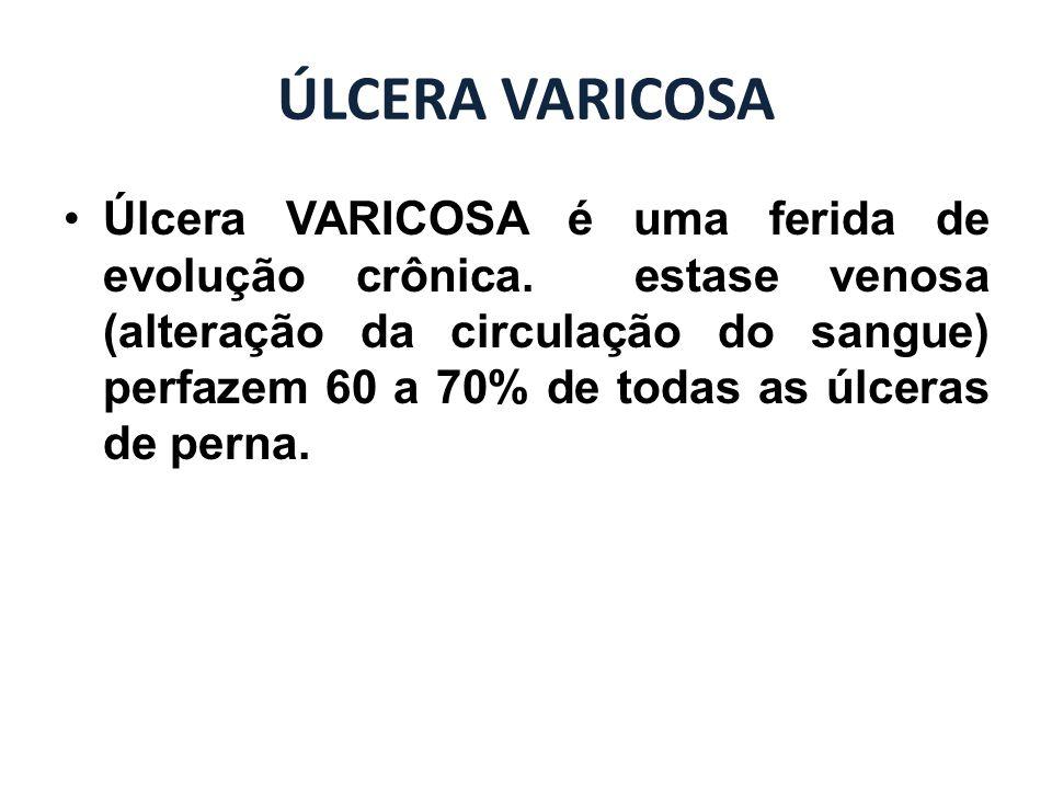 ÚLCERA VARICOSA Úlcera VARICOSA é uma ferida de evolução crônica. estase venosa (alteração da circulação do sangue) perfazem 60 a 70% de todas as úlce