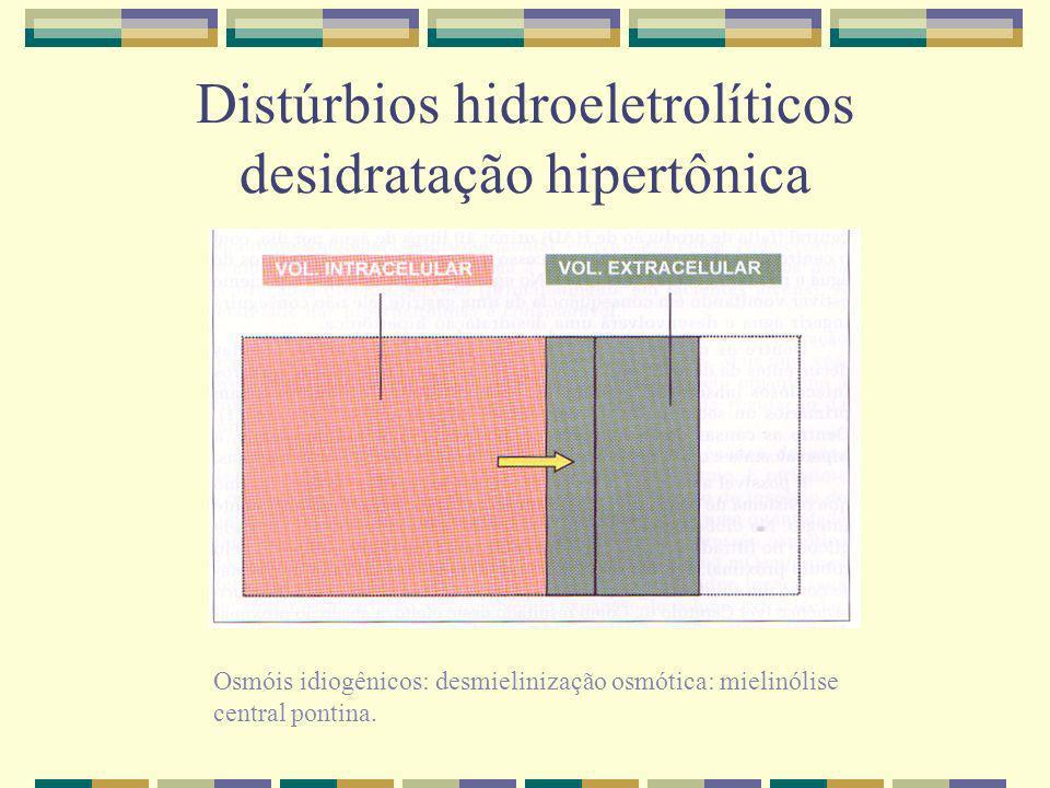 Distúrbios hidroeletrolíticos desidratação hipertônica Osmóis idiogênicos: desmielinização osmótica: mielinólise central pontina.