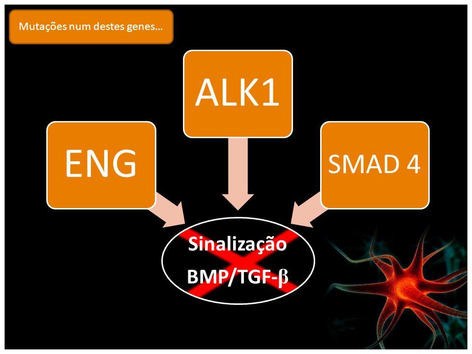 Sinalização BMP/TGF- β ENGALK1 SMAD 4 Mutações num destes genes…