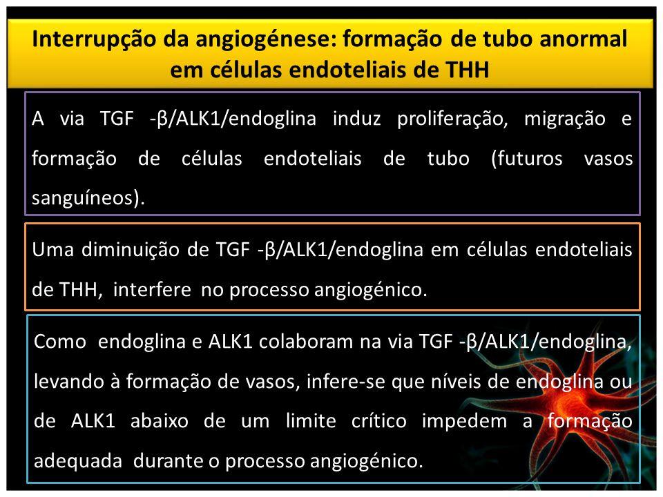 Interrupção da angiogénese: formação de tubo anormal em células endoteliais de THH A via TGF -β/ALK1/endoglina induz proliferação, migração e formação