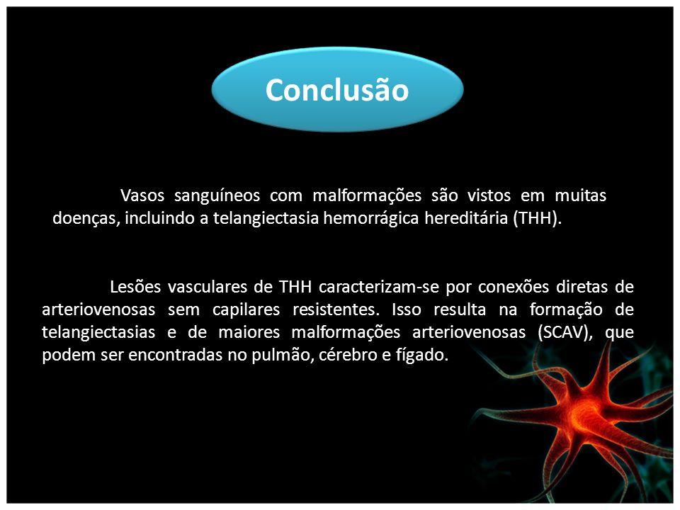 Conclusão Vasos sanguíneos com malformações são vistos em muitas doenças, incluindo a telangiectasia hemorrágica hereditária (THH). Lesões vasculares