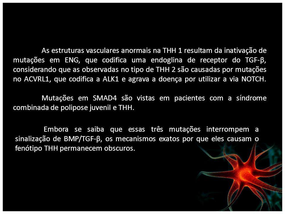 As estruturas vasculares anormais na THH 1 resultam da inativação de mutações em ENG, que codifica uma endoglina de receptor do TGF-β, considerando qu