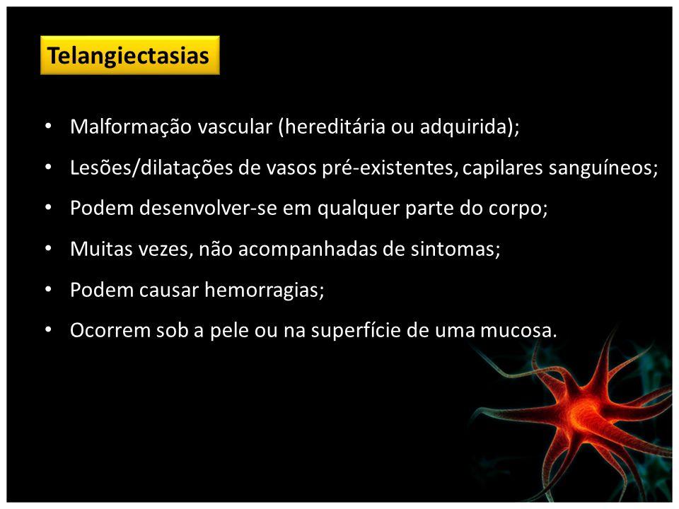 Telangiectasias Malformação vascular (hereditária ou adquirida); Lesões/dilatações de vasos pré-existentes, capilares sanguíneos; Podem desenvolver-se