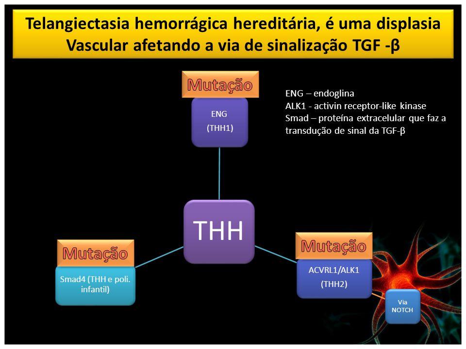 THH ENG (THH1) ACVRL1/ALK1 (THH2) Via NOTCH Smad4 (THH e poli. infantil) Telangiectasia hemorrágica hereditária, é uma displasia Vascular afetando a v