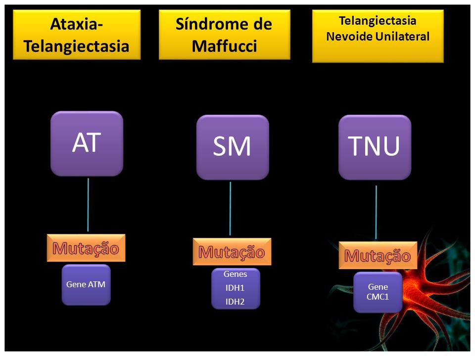 Ataxia- Telangiectasia Síndrome de Maffucci Telangiectasia Nevoide Unilateral SMTNUAT Gene ATM Genes IDH1 IDH2 Gene CMC1