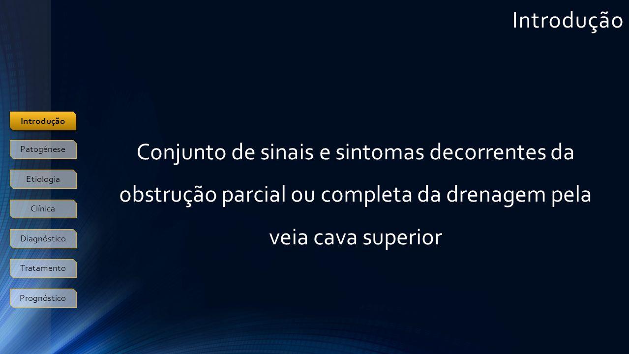 Patogénese O BSTRUÇÃO DA VEIA CAVA Compressão extrínseca Patologia benigna ou maligna envolvendo o pulmão direito, gg linfáticos ou estruturas mediastínicas Obstrução intrínseca ou luminal Infiltração neoplásica, trombose D ESENVOLVIMENTO DE CIRCULAÇÃO COLATERAL Ázigos, torácica interna, torácica lateral, sistema venoso esofágico Introdução Patogénese Etiologia Clínica Diagnóstico Tratamento Prognóstico