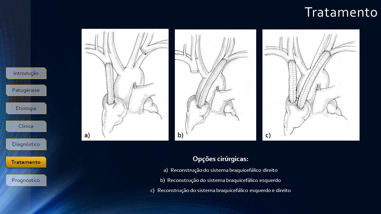 Tratamento Introdução Patogénese Etiologia Clínica Diagnóstico Prognóstico Tratamento Opções cirúrgicas: a)Reconstrução do sistema braquicefálico dire