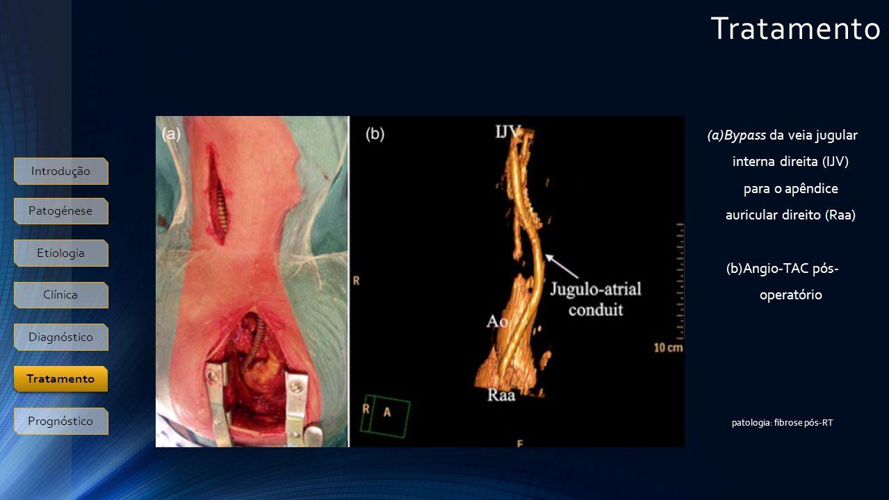 Tratamento Introdução Patogénese Etiologia Clínica Diagnóstico Prognóstico Tratamento (a)Bypass da veia jugular interna direita (IJV) para o apêndice auricular direito (Raa) (b)Angio-TAC pós- operatório patologia: fibrose pós-RT