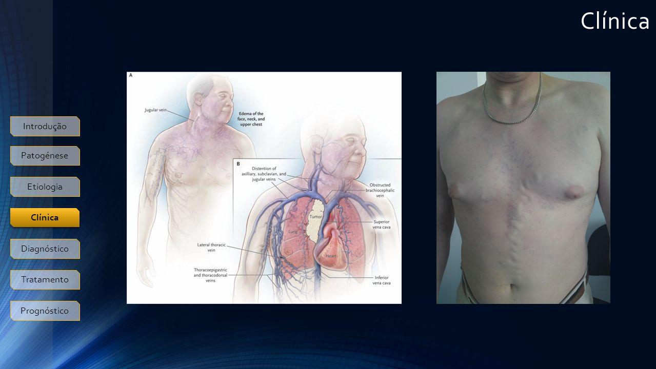 Clínica Introdução Patogénese Etiologia Clínica Diagnóstico Tratamento Prognóstico