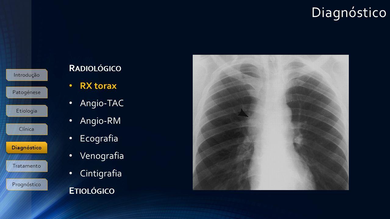 Diagnóstico R ADIOLÓGICO RX torax Angio-TAC Angio-RM Ecografia Venografia Cintigrafia E TIOLÓGICO Introdução Patogénese Etiologia Clínica Tratamento Prognóstico Diagnóstico