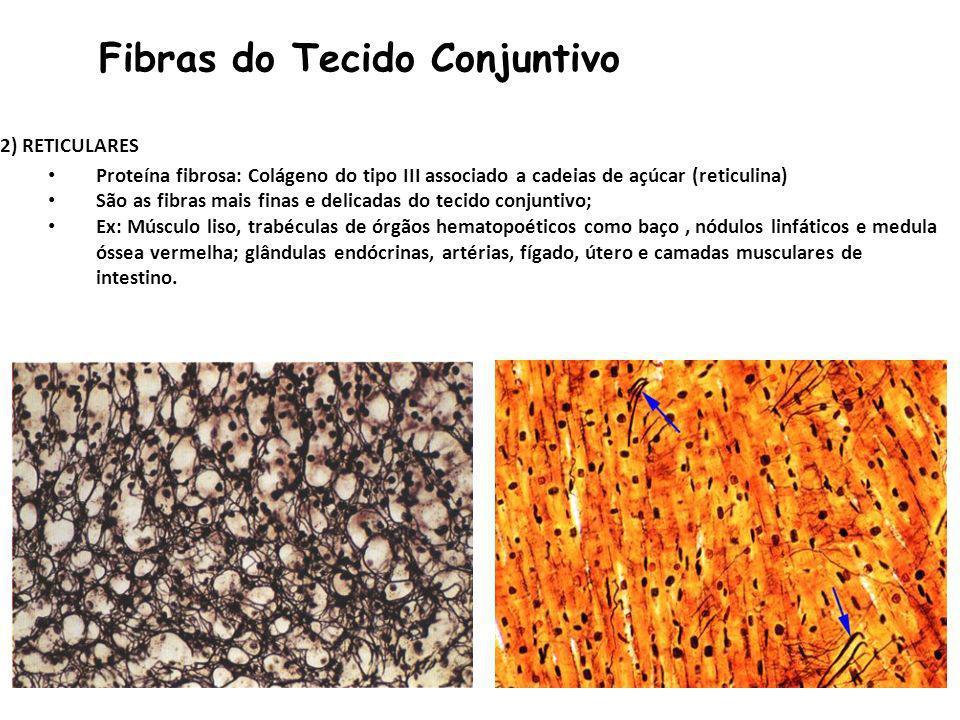 Fibras do Tecido Conjuntivo 2) RETICULARES Proteína fibrosa: Colágeno do tipo III associado a cadeias de açúcar (reticulina) São as fibras mais finas e delicadas do tecido conjuntivo; Ex: Músculo liso, trabéculas de órgãos hematopoéticos como baço, nódulos linfáticos e medula óssea vermelha; glândulas endócrinas, artérias, fígado, útero e camadas musculares de intestino.