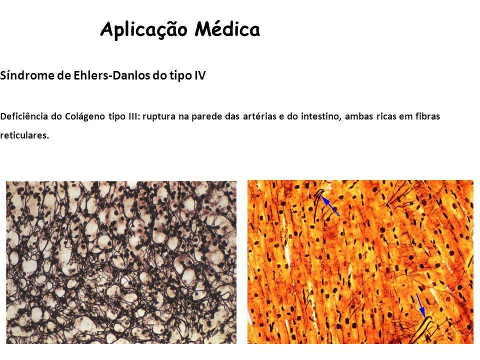 Aplicação Médica Síndrome de Ehlers-Danlos do tipo IV Deficiência do Colágeno tipo III: ruptura na parede das artérias e do intestino, ambas ricas em fibras reticulares.
