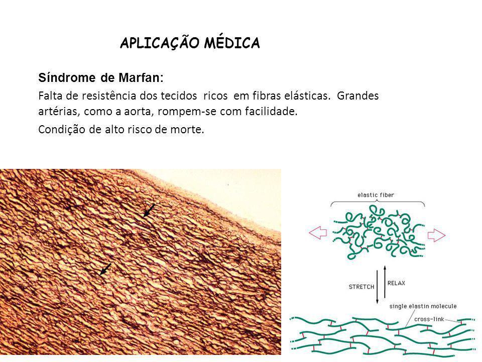 APLICAÇÃO MÉDICA Síndrome de Marfan: Falta de resistência dos tecidos ricos em fibras elásticas. Grandes artérias, como a aorta, rompem-se com facilid