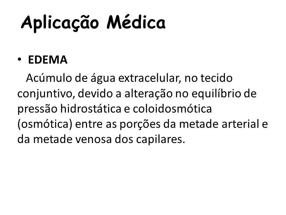 Aplicação Médica EDEMA Acúmulo de água extracelular, no tecido conjuntivo, devido a alteração no equilíbrio de pressão hidrostática e coloidosmótica (osmótica) entre as porções da metade arterial e da metade venosa dos capilares.