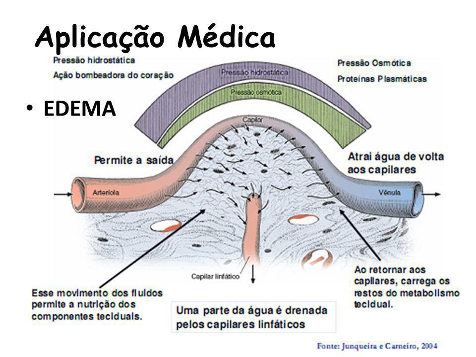 Aplicação Médica EDEMA
