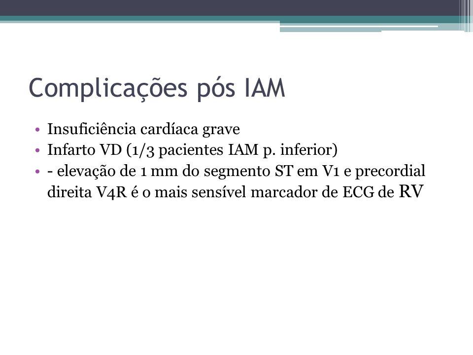 Complicações pós IAM Insuficiência cardíaca grave Infarto VD (1/3 pacientes IAM p. inferior) - elevação de 1 mm do segmento ST em V1 e precordial dire