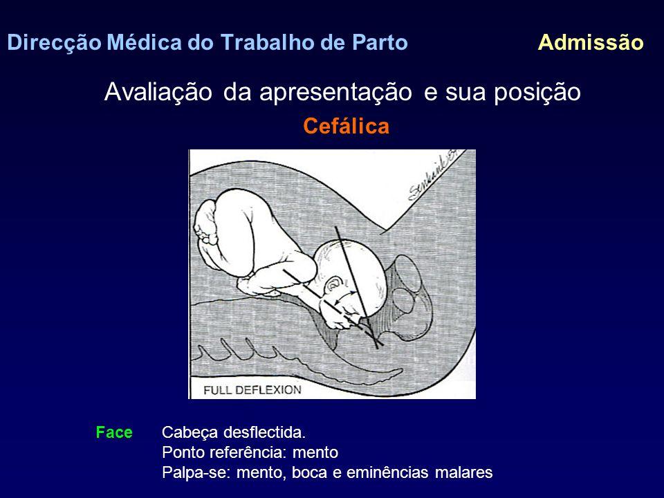 Direcção Médica do Trabalho de Parto Admissão Avaliação da apresentação e sua posição Cefálica - Vertex > 95% no momento do parto