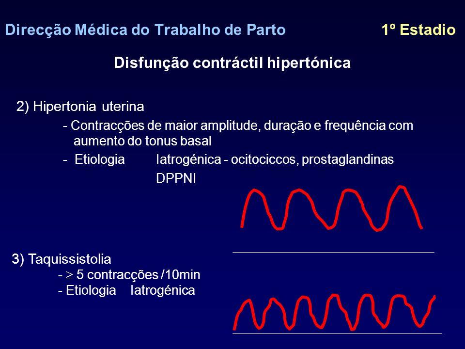 Direcção Médica do Trabalho de Parto 1º Estadio Disfunção contráctil hipertónica (hipertonia/taquissistolia) Terapêutica 1) Suspensão da administração de ocitócicos 2) Administração rápida de fluidos 3) Reposicionamento da paciente em decúbito lat.