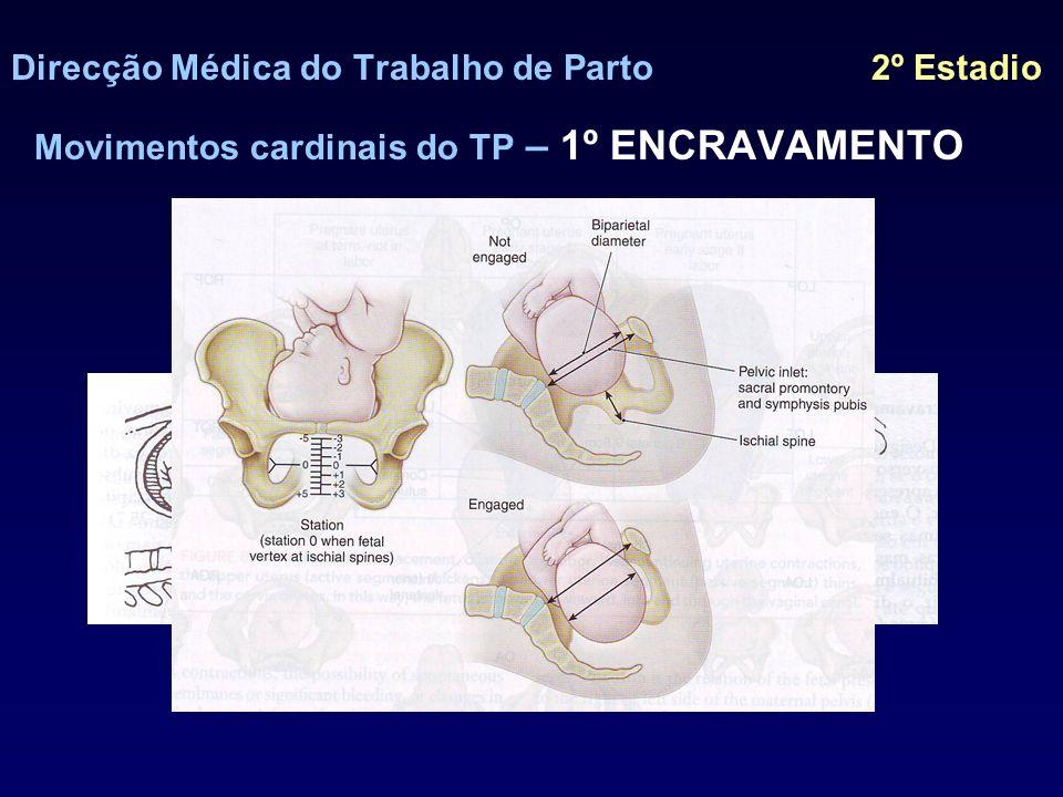 Direcção Médica do Trabalho de Parto 2º Estadio Movimentos cardinais do TP – 2º FLEXÃO