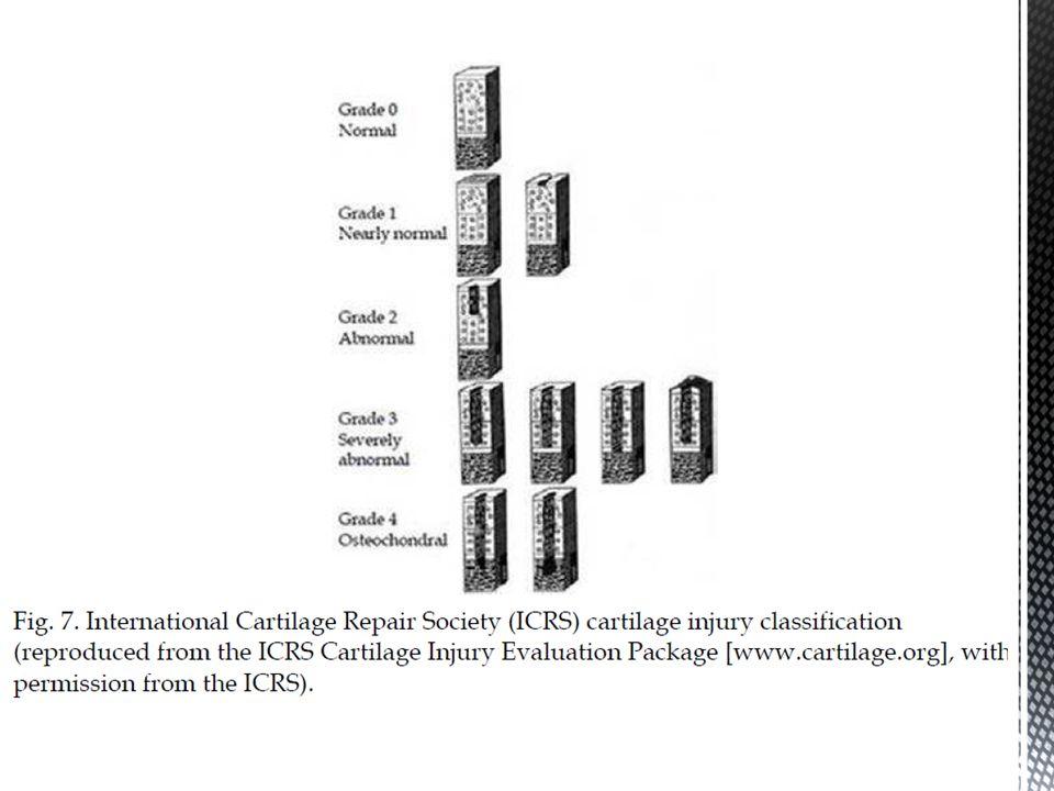 Desequilíbrio degradação x síntese Condrócitos, ME e osso subcondral Cartilagem: hipertrofia, degradação e mineralização.