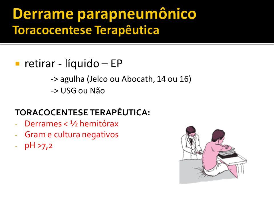 retirar - líquido – EP -> agulha (Jelco ou Abocath, 14 ou 16) -> USG ou Não TORACOCENTESE TERAPÊUTICA: - Derrames < ½ hemitórax - Gram e cultura negat