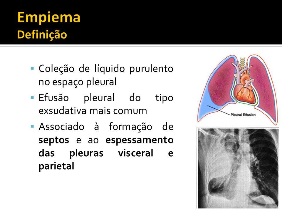 Coleção de líquido purulento no espaço pleural Efusão pleural do tipo exsudativa mais comum Associado à formação de septos e ao espessamento das pleur