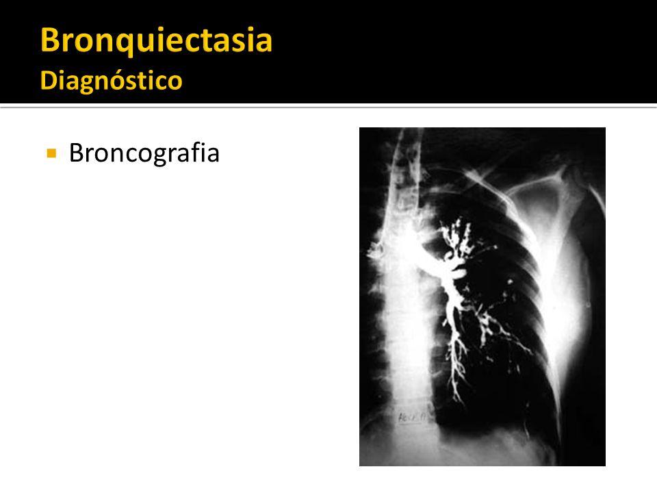 Broncografia