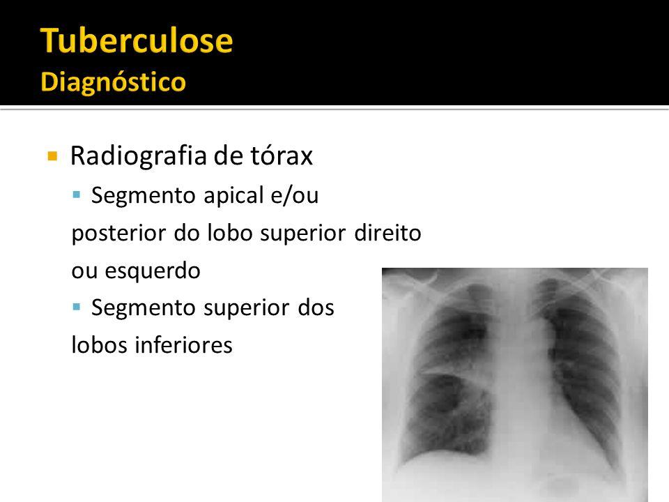 Radiografia de tórax Segmento apical e/ou posterior do lobo superior direito ou esquerdo Segmento superior dos lobos inferiores