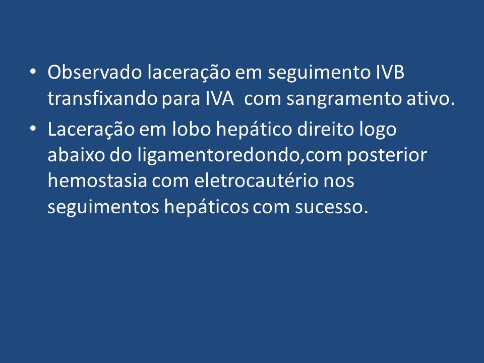 Observado laceração em seguimento IVB transfixando para IVA com sangramento ativo.