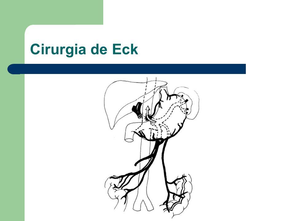 Cirurgia de Eck