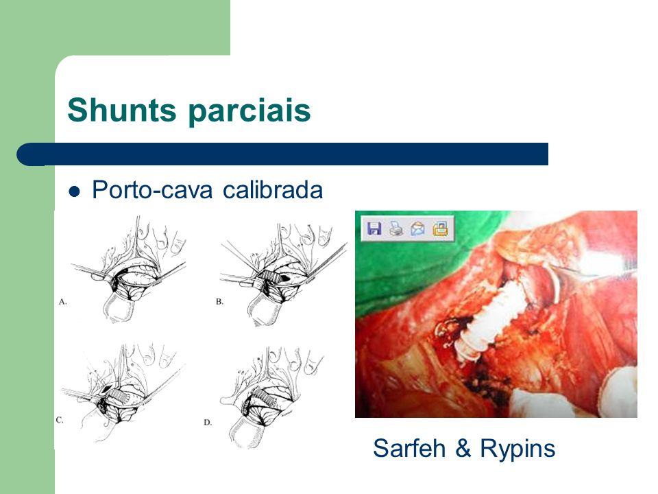 Shunts parciais Porto-cava calibrada Sarfeh & Rypins