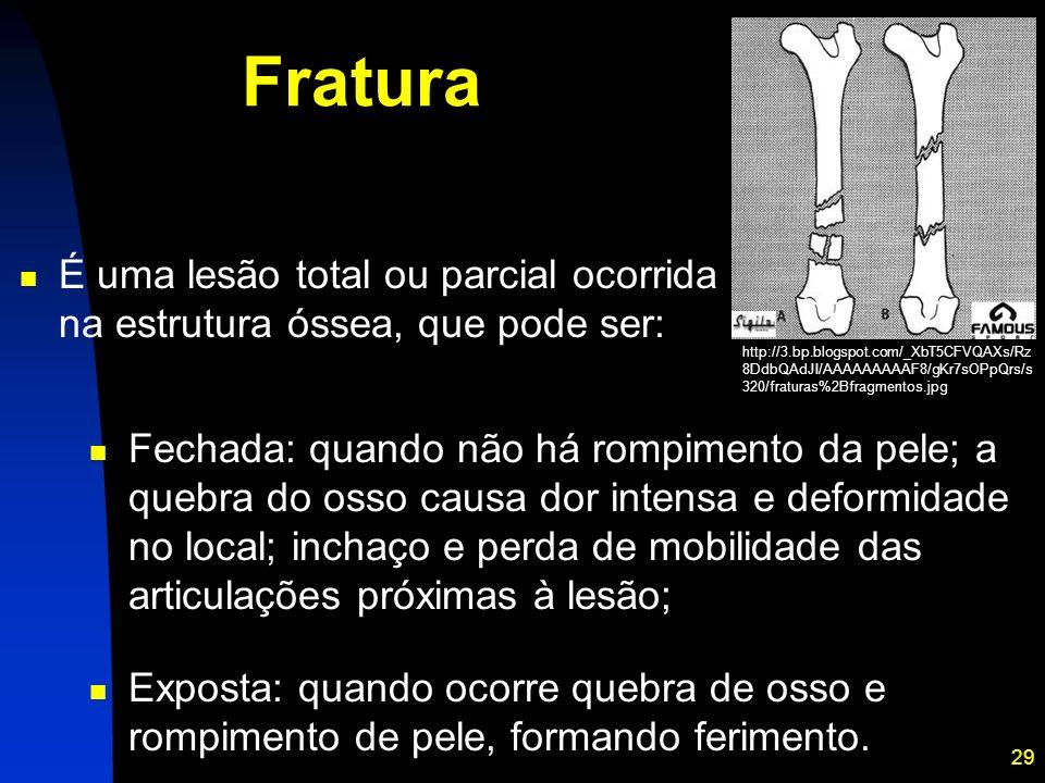 29 Fratura Fechada: quando não há rompimento da pele; a quebra do osso causa dor intensa e deformidade no local; inchaço e perda de mobilidade das art
