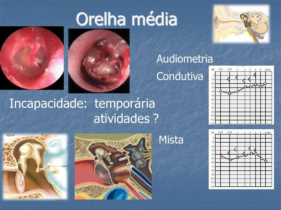 Orelha média Audiometria Incapacidade: temporária atividades ? Condutiva Mista