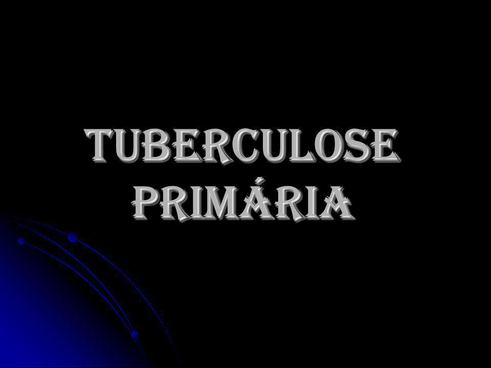 TUBERCULOSE PRIMÁRIA
