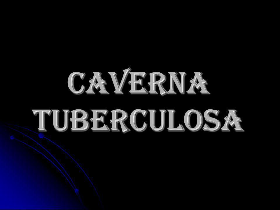CAVERNA TUBERCULOSA