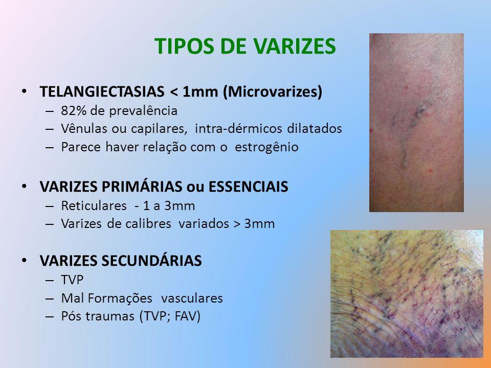 TIPOS DE VARIZES TELANGIECTASIAS < 1mm (Microvarizes) – 82% de prevalência – Vênulas ou capilares, intra-dérmicos dilatados – Parece haver relação com o estrogênio VARIZES PRIMÁRIAS ou ESSENCIAIS – Reticulares - 1 a 3mm – Varizes de calibres variados > 3mm VARIZES SECUNDÁRIAS – TVP – Mal Formações vasculares – Pós traumas (TVP; FAV)