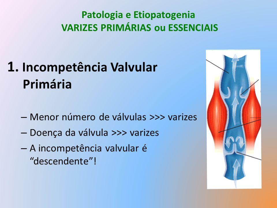 Patologia e Etiopatogenia VARIZES PRIMÁRIAS ou ESSENCIAIS 1.