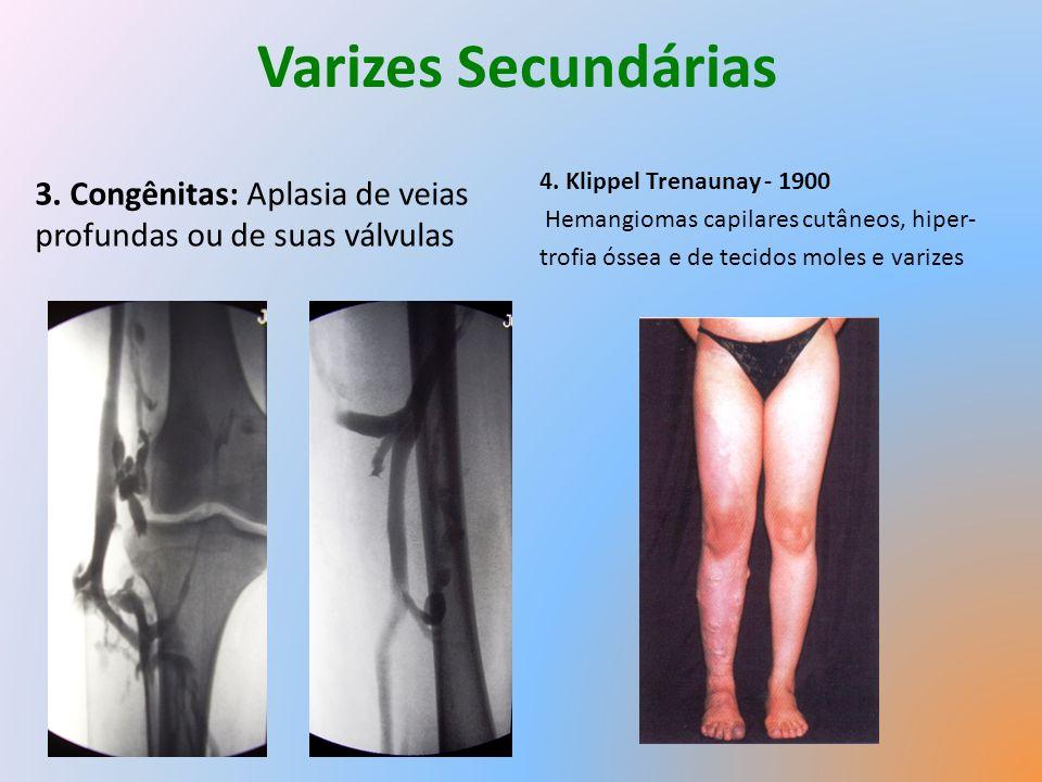Varizes Secundárias 3.Congênitas: Aplasia de veias profundas ou de suas válvulas 4.